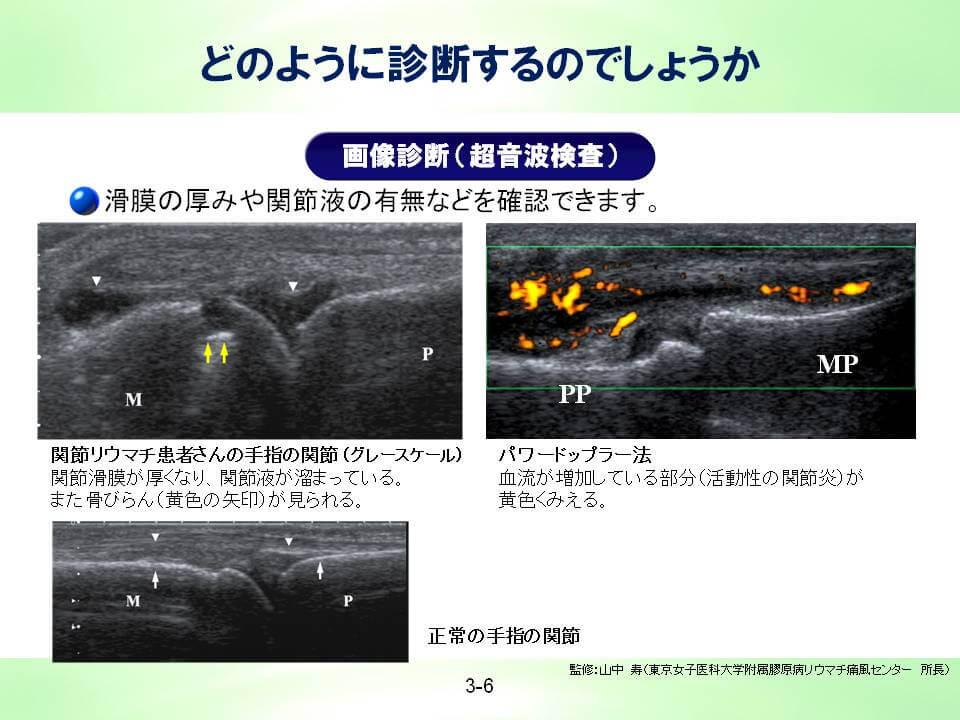 画像診断(超音波検査)