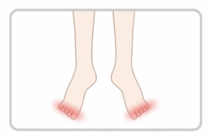 裏 痛い の 付け根 親指 が 足 の